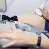 胎児ドックとは?検査でわかる胎児の異常と検査内容について