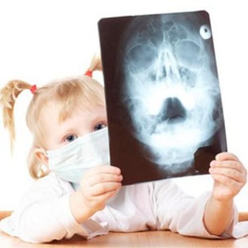 蓄膿症のレントゲン